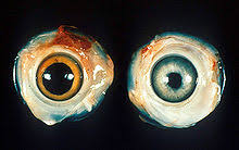 Ocular Marek's