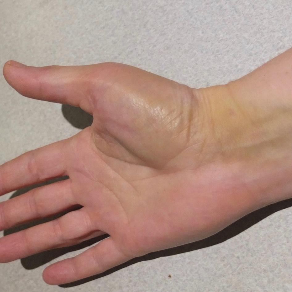 Bruises Day 8